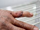 worker's amputated thumb reattached
