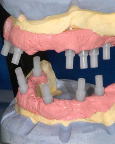 Implant Prosthodontics - February 20th 2020