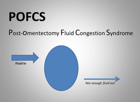 "What's In a Name? Post-Omentectomy Fluid Congestion Syndrome (""POFCS"")."