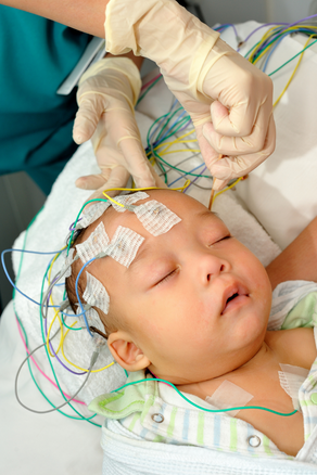 What To Ask Your Child's Neurologist