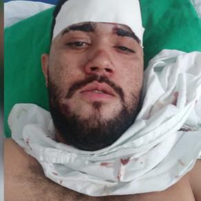 Homem fica com bala alojada na cabeça após ser vítima de assalto em Paulo Afonso-BA