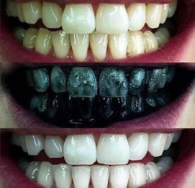 Novo Produto Clareador Dental Vira Febre No Brasil Portal Formosa