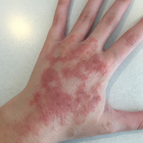 My Journey with Eczema Part II