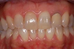 rifacimento-corona-studio-dentistico-padova