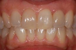 rifacimento-corona-dopo-studio-dentistico-padova
