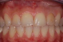studio-dentistico-padova-discromia-prima