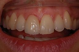 studio-dentistico-padova-trattameno-dopo