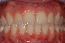 studio-dentistico-padova-discromia-dopo
