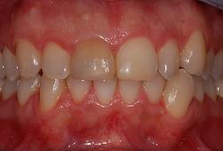 discromia-incisivo-studio-dentistico-padova