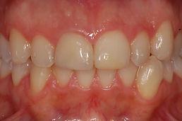 discromia-incisivo-dopo-studio-dentistico-padova-