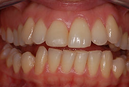 studio-dentistico-padova-trattamento-prima