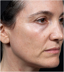 photo-512x454-face2-after.png