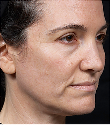 photo-512x454-face2-before.png