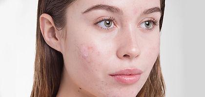 category_skincare_acne_2_840x400-nwtv3.j
