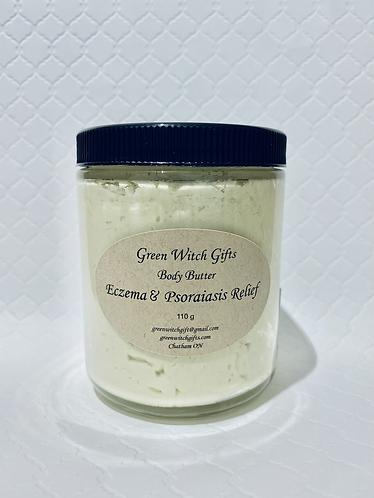 Eczema & Psoraiasis  Body Butter