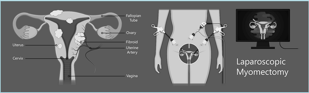 Diagram showing laparoscopic type of myomectomy