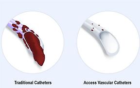 Access Vascular Sponsorship on BackTable