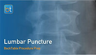 Lumbar Puncture Procedure Prep