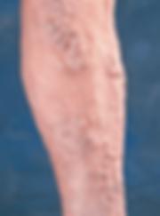 Leg-affected-by-multiple-bulging-varicose-veins
