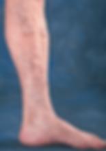 Venas-varicosas