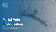 Portal Vein Embolization Procedure Prep