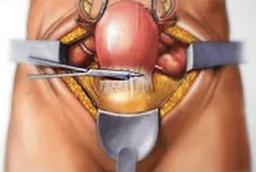 Hysterectomy surgery uterine fibroids treatment