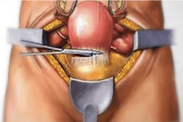 Hysterectomy surgery uterine fibroids treatment