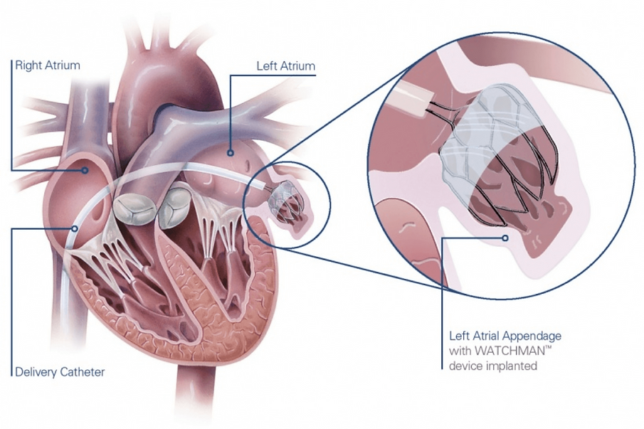 left-atrial-appendage-closure-watchman-procedure