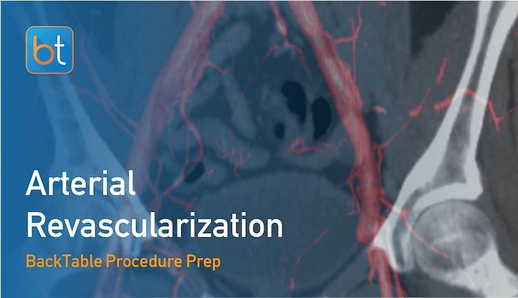 Step-by-step guidance on how to perform Arterial Revascularization. Review tools, techniques, pearls, and pitfalls on the BackTable Web App.