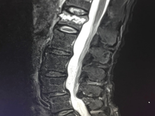 Kyphoplasty Versus Vertebroplasty in the Treatment of Spinal Compression Fractures