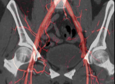 Intraoperative Management of Peripheral Arterial Disease