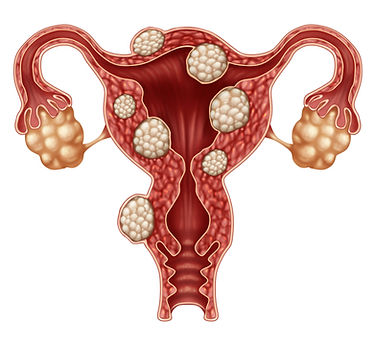A look at what fibroids are.