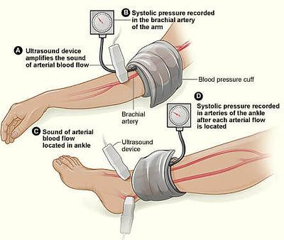 ankle-brachial-index-abi