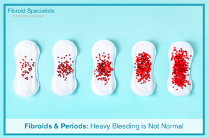 Fibroids & Period Bleeding   Treatment   Fibroid Specialists