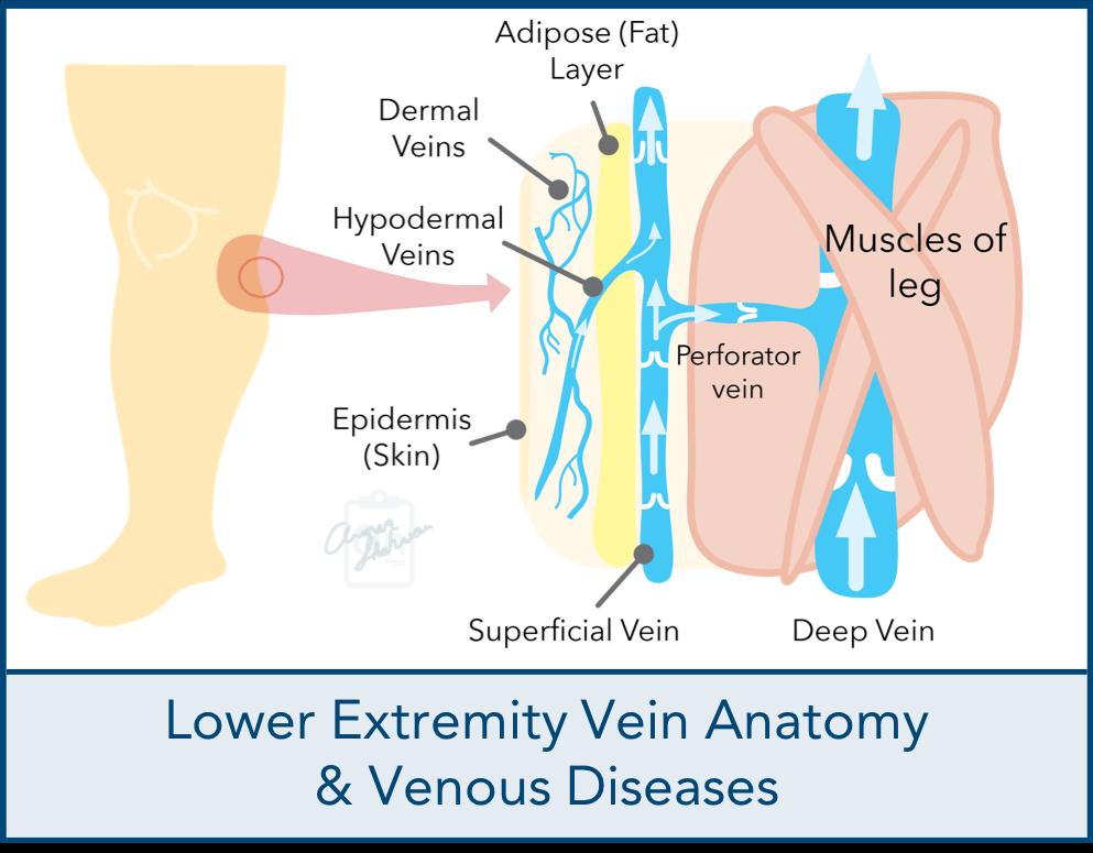 Lower Extremity Vein Anatomy Venous Diseases Dallas Vein Institute