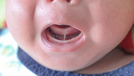 Baby with tongue-tie being evaulated for frenotomy procedure