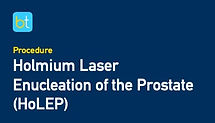 Holmium Laser Enucleation of the Prostate (HoLEP)