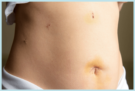 Laparoscopic hysterectomy scars from four incisions on the abdomen