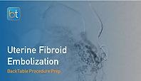Uterine Fibroid Embolization (UFE) Procedure