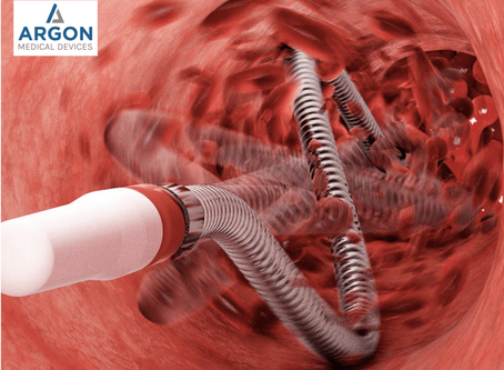 Shorter Declot Procedure Time Using the Argon Cleaner Thrombectomy System