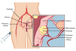 Uterine fibroid embolization UFE diagram