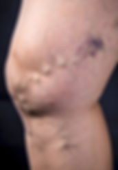 Patient-with-varicose-vein-and-spider-veins
