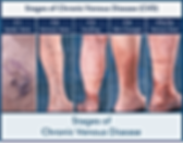 Stages-of-Chronic-Venous-Disease-Dallas-Vein-Institute-article-cover-art