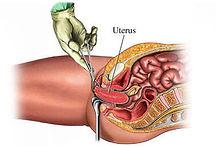 Diagram of vaginal hysterectomy