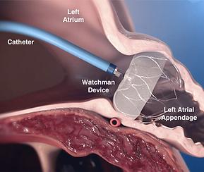LAA Watchman device implant