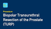Bipolar Transurethral Resection of the Prostate (TURP)
