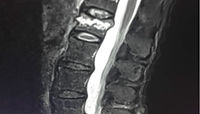 Spinal therapy used to treat spinal compression
