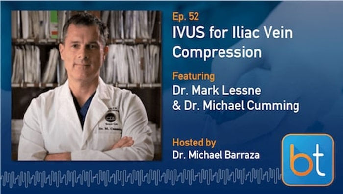Transcript: IVUS for Iliac Vein Compression