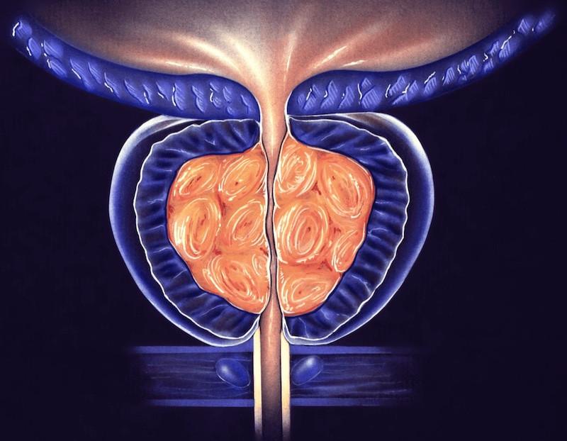 Prostate artery embolization side effects