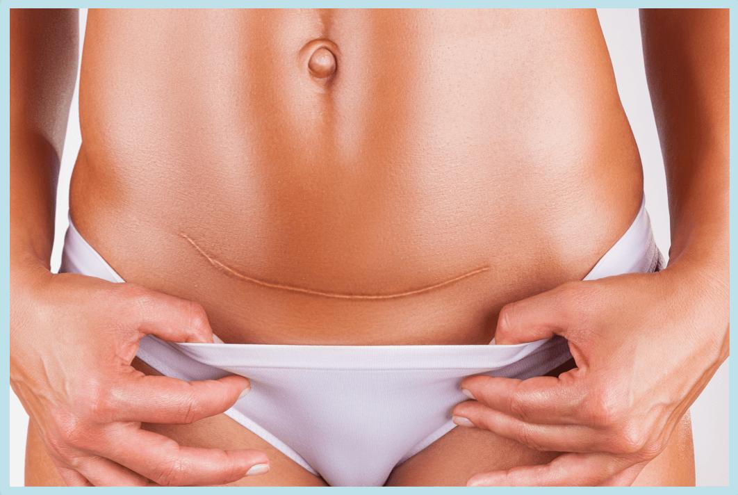 Woman showing abdominal hysterectomy scar